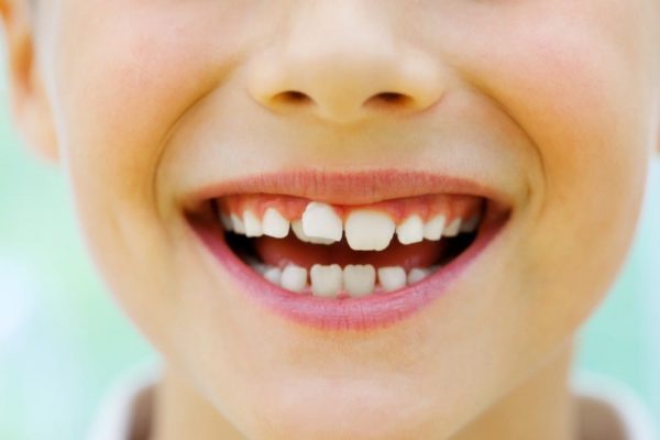 Child with crooked teeth